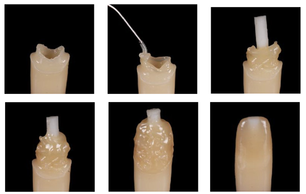 build tokuyama anterior destroyed teeth