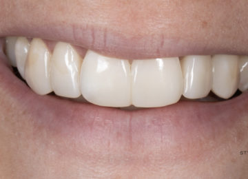 krupinsky style italiano dentist styleitaliano lucida diashine