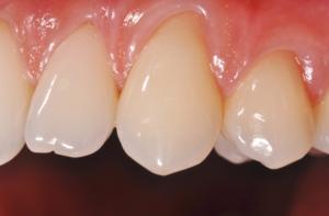 styleitaliano teeth