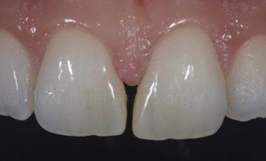 walter devoto diastema closure 3M filtek Universal