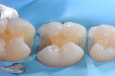The cavities before the restoration works styleitaliano style italiano