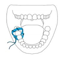 Asa Dental Vision Dam style italiano styleitaliano rubber dam