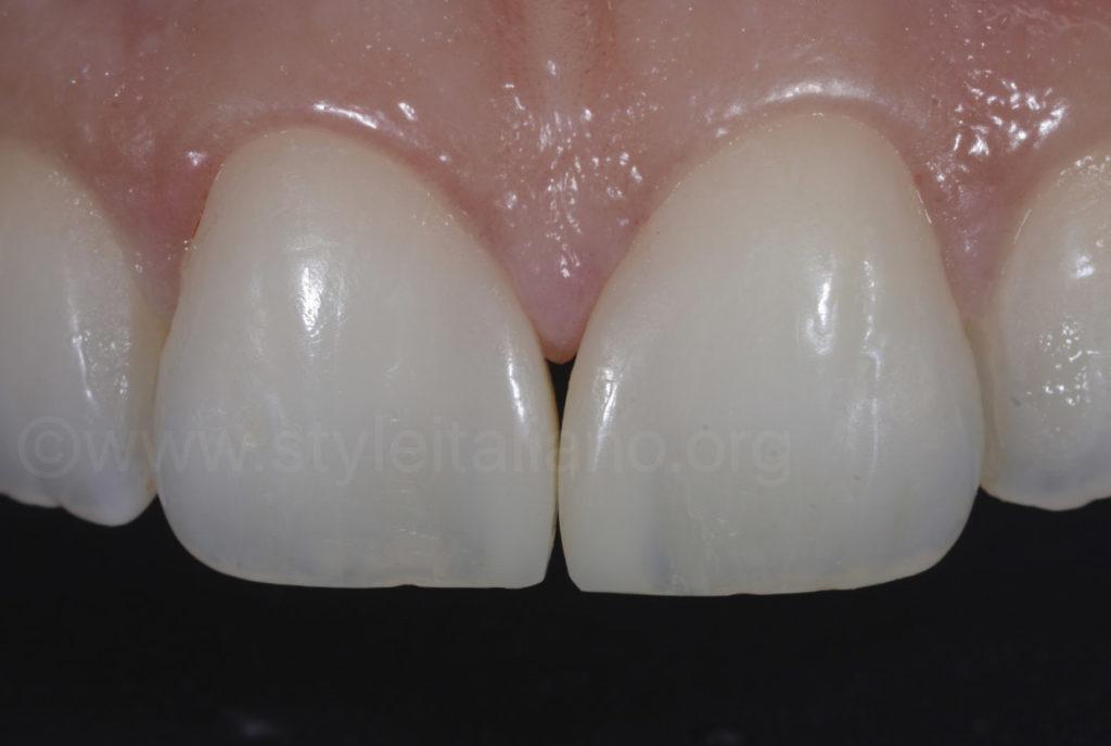 filtek universal after treatment