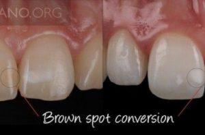 white dental beauty bleaching style italiano