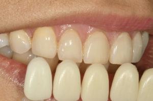 saracinelli clinical case colors teeth white dental beauty composite
