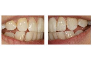 saracinelli white dental beauty composite style italiano