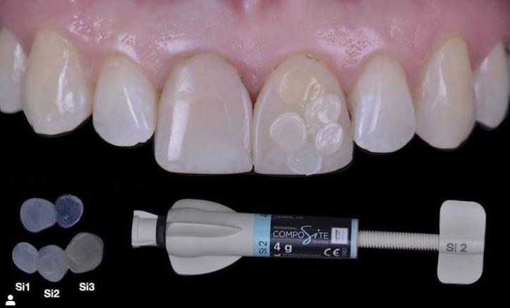 WHITEOLOGY style italiano composite White dental beauty instagram