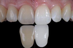 articulo bleaching anna salat teeth whitening gel STYLE ITALIANO