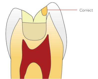 tokuyama correct teeth sketch