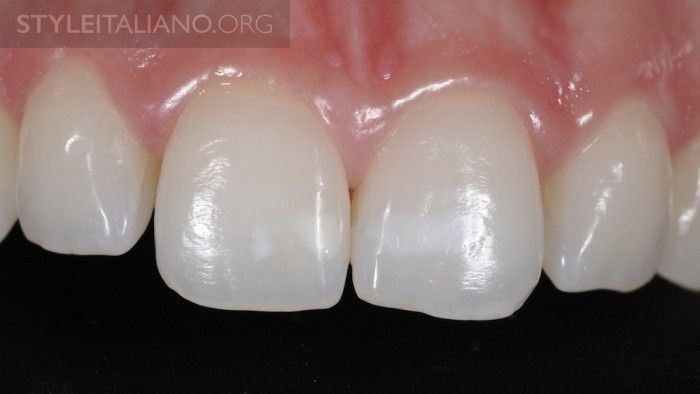 after teeth whitening gel white dental beauty style italiano products