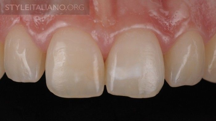 before teeth whitening gel white dental beauty style italiano products