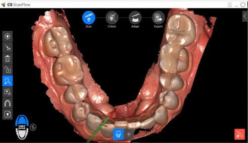 carestream intraoral scanner digital dentistry styleitaliano