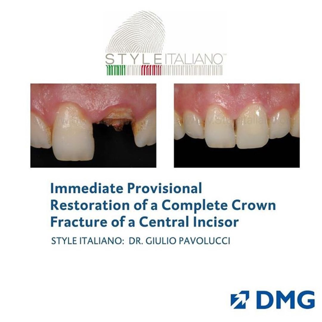 dmg luxacrown styleitaliano clinical case
