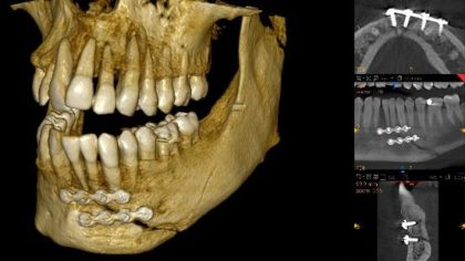 carestream extraoral scanner imaging solution digital dentistry styleitaliano
