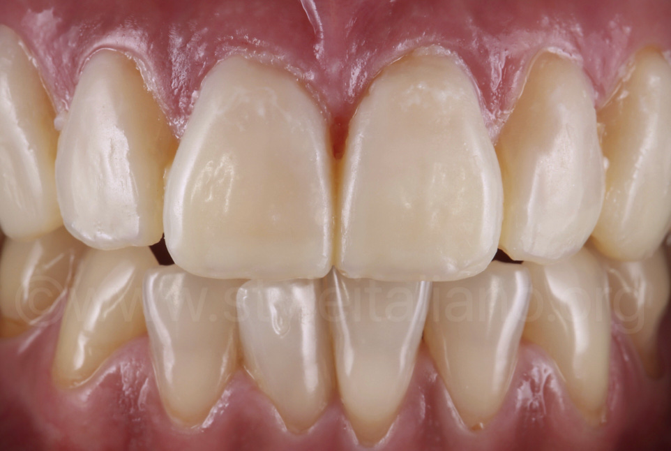 From Mock-Up to Provisional Restorations. A Step by Step Guide to bis-acryl resins