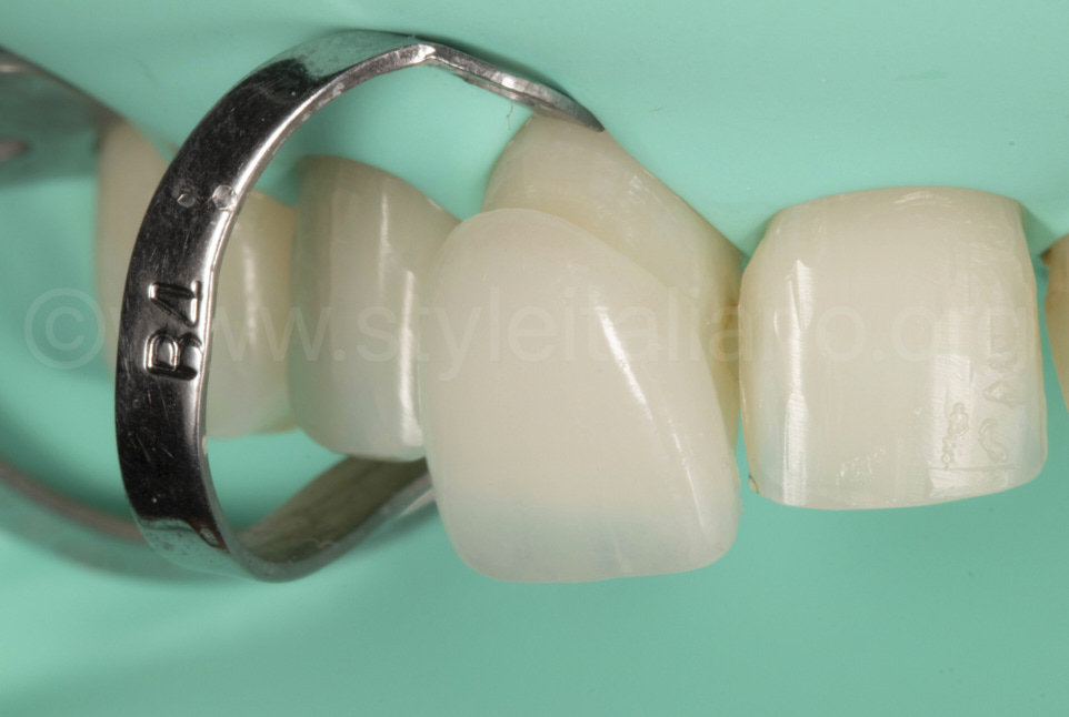 Integration of veneers esthetic and predictable protocols