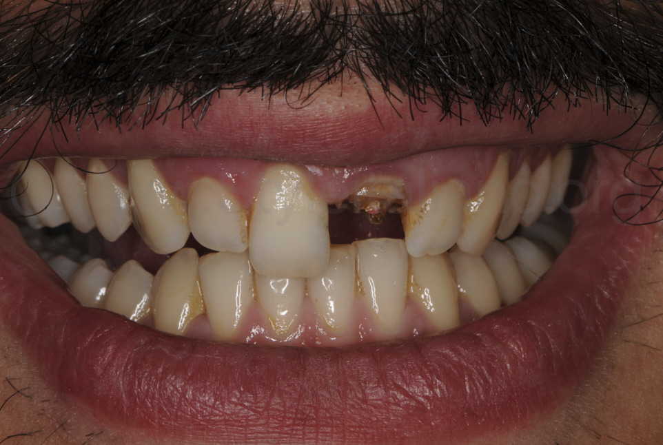 Immediate provisional restoration of a complete crown fracture of a central incisor