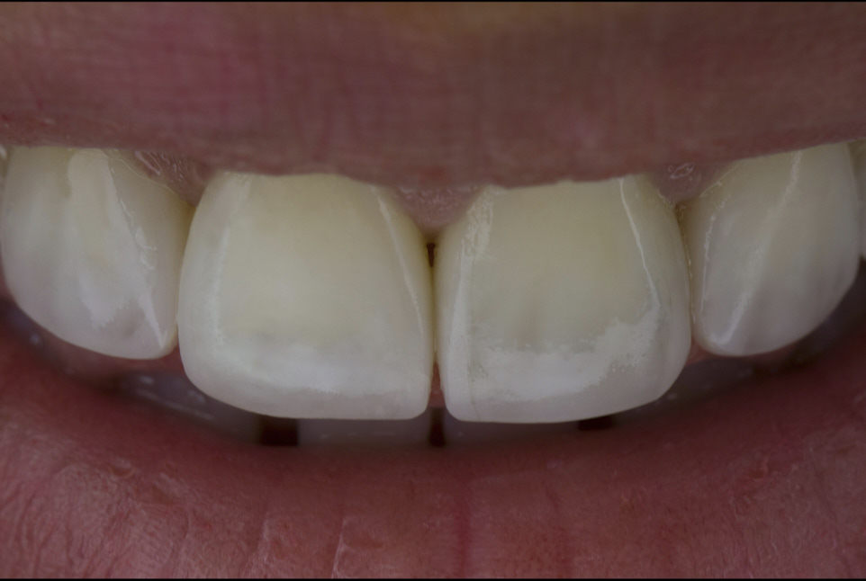 Multiple Diastema Closure Using 3D Digital Wax-up