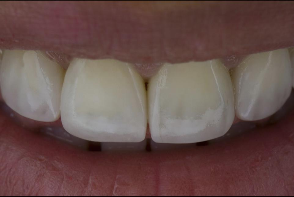 Multiple Diastema Closure Using 3D Digital Wax-up