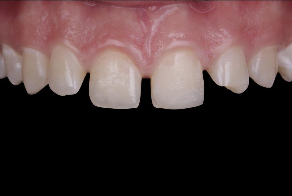 Simple multi-shade approach for closure of multiple diastemata