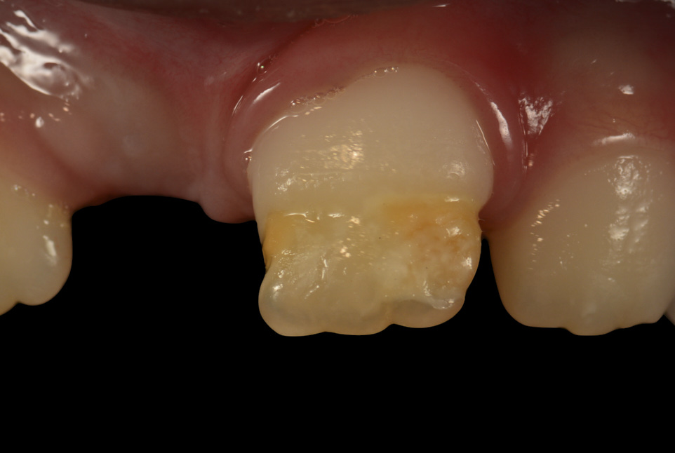 Conservative Management of Hypoplasia and Anterior Crown Deformation after Primary Tooth Trauma. Double Approach.