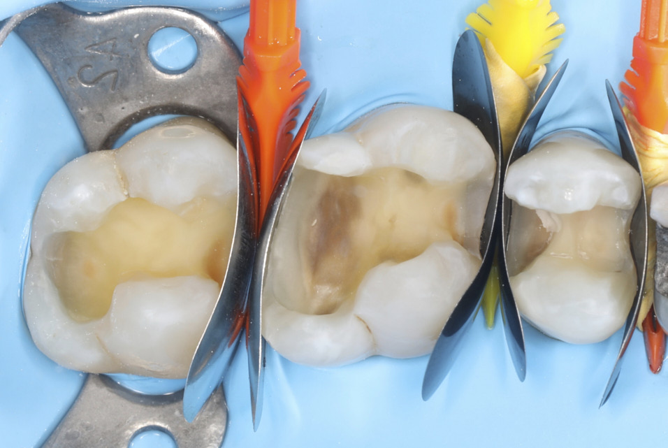 Managing contact points in posterior direct restorations