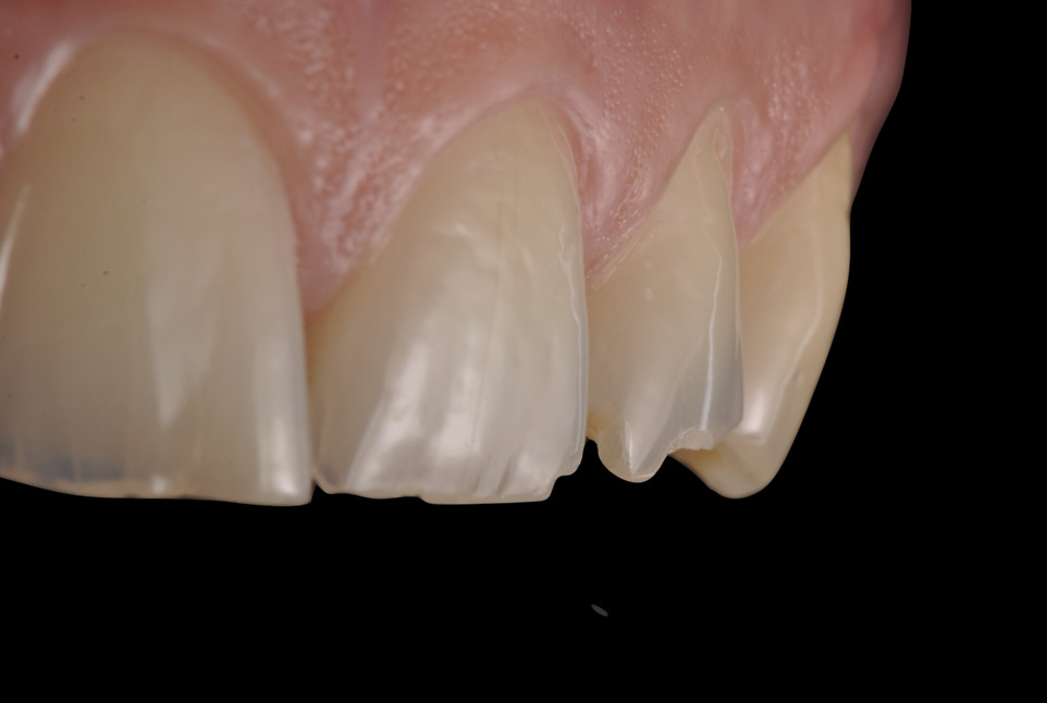 Sense of preservation in treating worn dentition. Full mock up and digital approach.