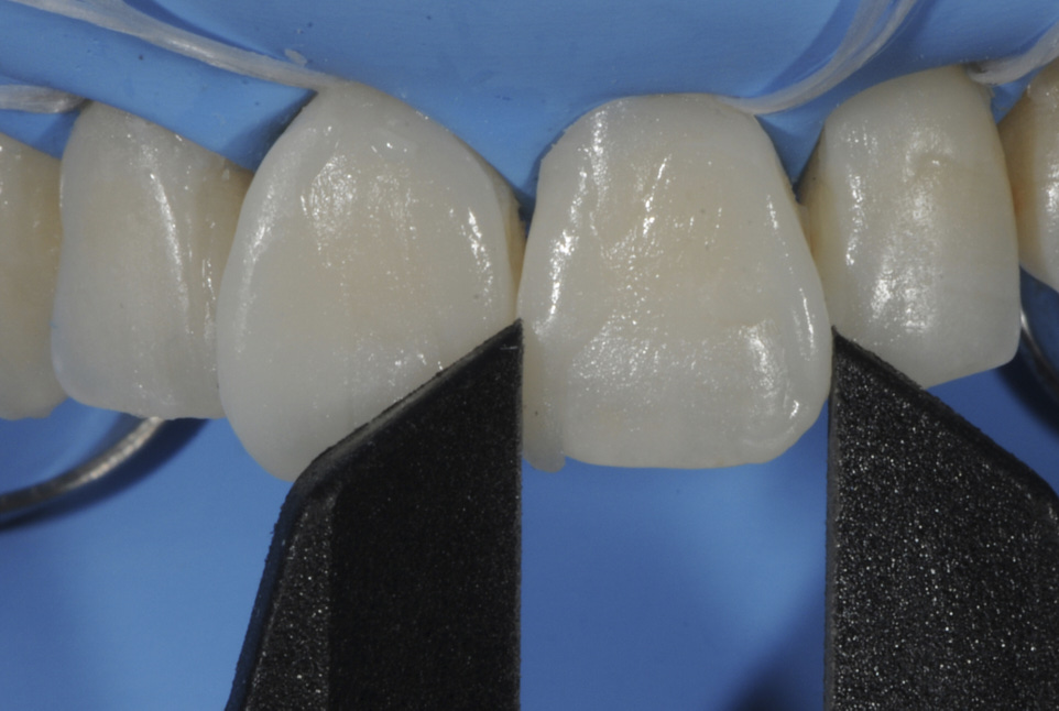 Smile makeover with direct composites: looking for good compromises