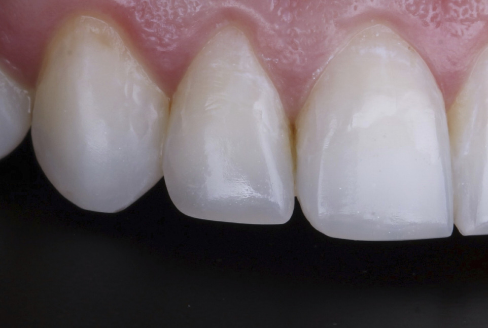The power of incisal embrasures