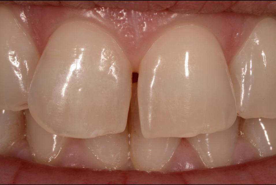 Single mass diastema closure. An easy approach