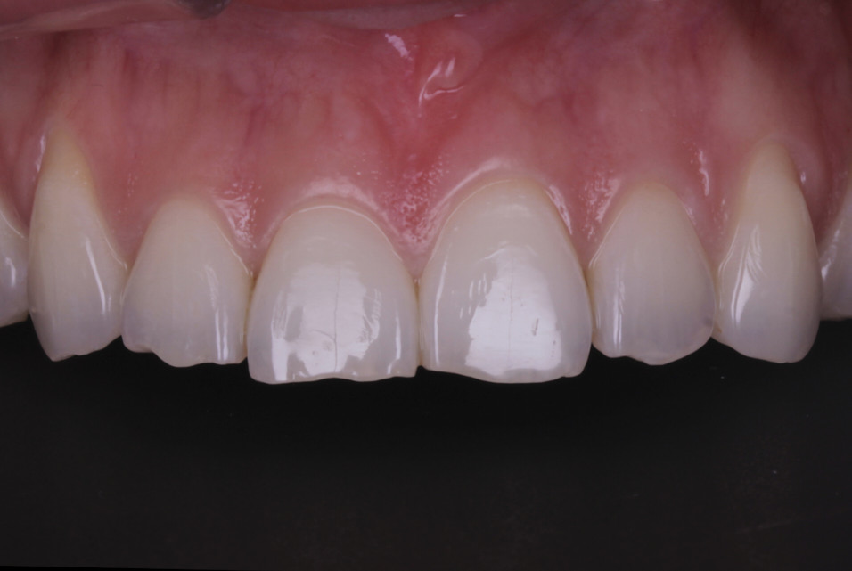 Post-orthodontic direct incisal lengthening