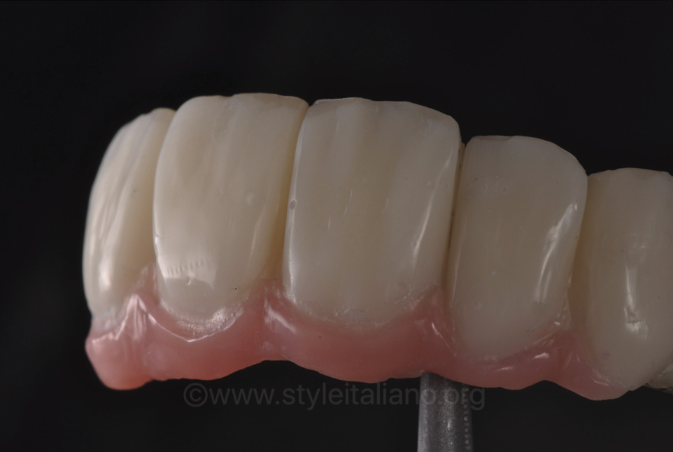 Making the best out of your analogical world. Provisional implant-supported FDPs.