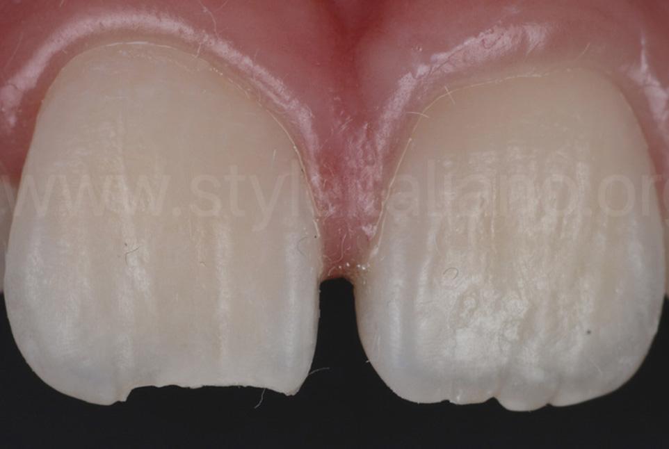 Bubble-free flowable restoration in esthetic anterior composites