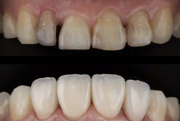 Indirect composite veneers for post-endodontic rehabilitation