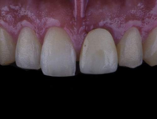 Perfecting smiles with tooth whitening style italiano