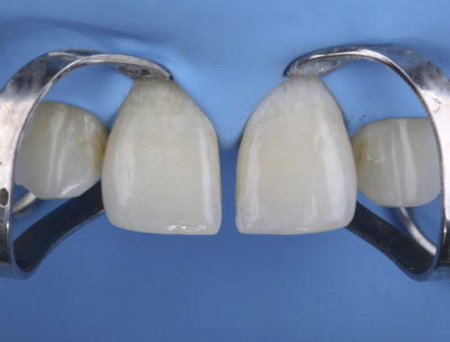 Midline diastema closure using the Front Wing technique style italiano