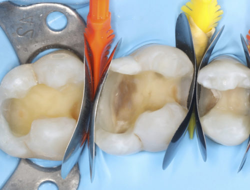 Managing contact points in posterior direct restorations style italiano