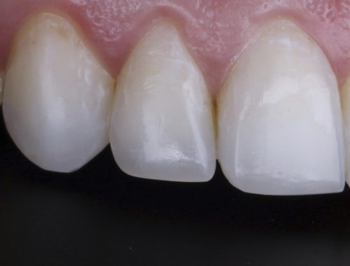 The power of incisal embrasures style italiano