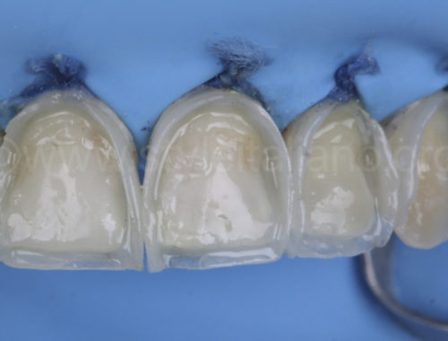 Full CompoSite smile makeover. How direct veneers can change a smile white dental beauty style italiano