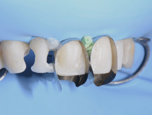 I bleach teeth with white composite restorations styleitaliano