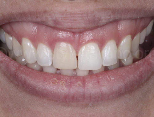 Masking discolourations with direct veneers. A simplified protocol style italiano styleitaliano wdb