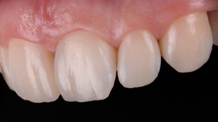 Esthetic and functional integration with direct composite restorations