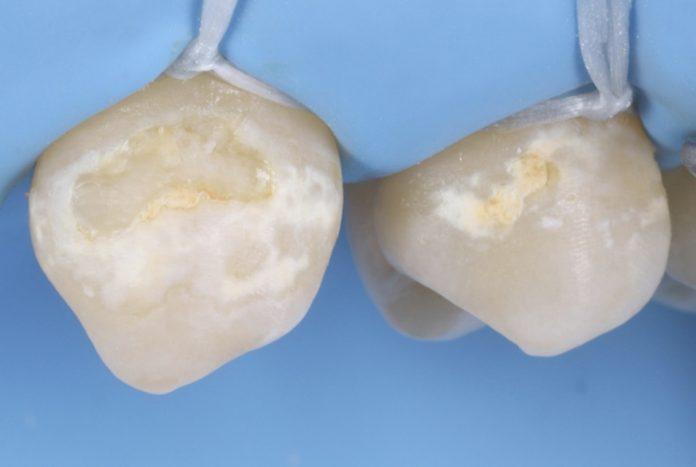 Minimally invasive treatment of cervical caries style italiano styleitaliano
