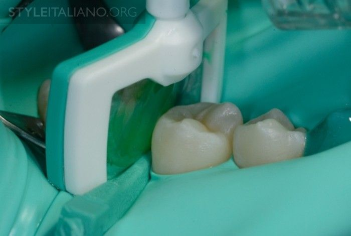 Posterior resin in infiltration and direct vision DMG icon style italiano styleitaliano