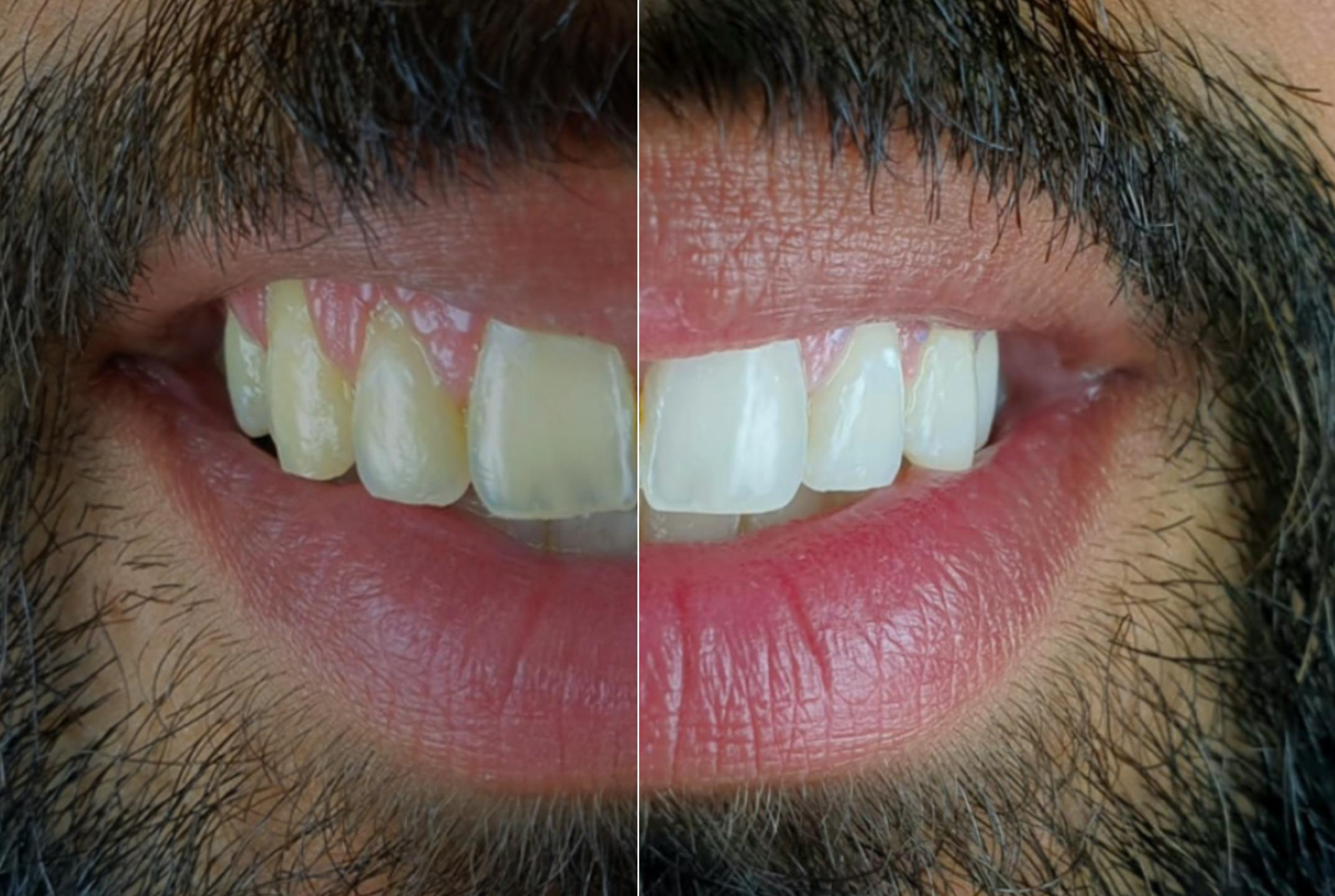 Documenting the Evolution of Bleaching Treatment with Mobile Dental Photography style italiano styleitaliano teeth whitening gels white dental beauty