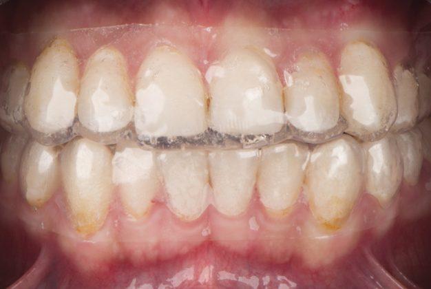Confident Smile with Dental Bleaching style italiano styleitaliano teeth whitening gels white dental beauty