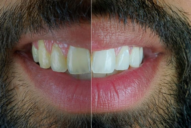 Documenting the Evolution of Bleaching Treatment with Mobile Dental Photography style italiano styleitaliano