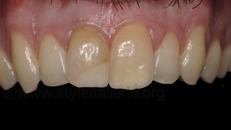 Bleaching, Restoring and Gum Contouring style italiano styleitaliano