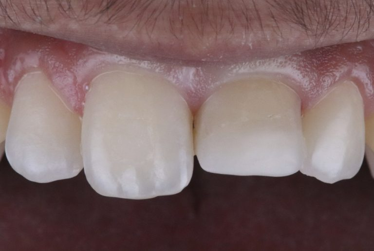 Unesthetic restoration of a previously endodontically treated tooth style italiano styleitaliano