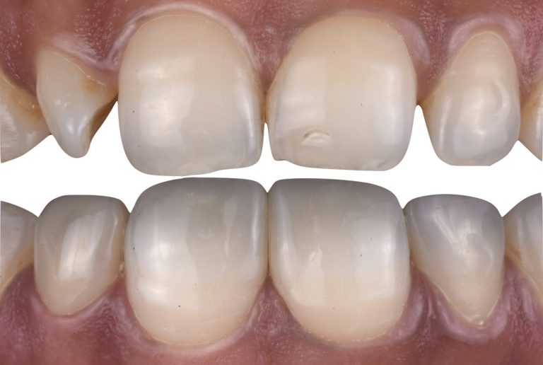 De-mystifying smile designing with direct composite. One material, many solutions style italiano styleitaliano